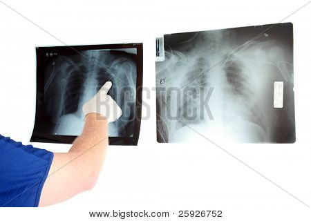 a unseen doctor or X-Ray Tec examins some X-Rays with room for your text isolated on white