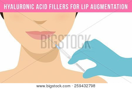 Woman makes procedure of beauty injection for lip augmentation. Hyaluronic acid lip filler injection. Vector poster