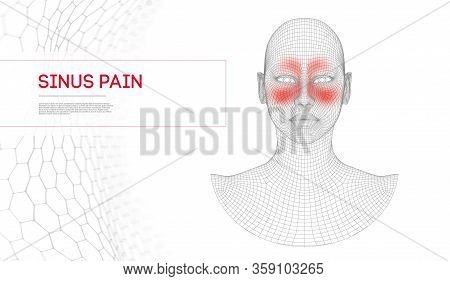 Nose Sinus Pain Woman. Nasal Infection, Frontal Sinus Pain Nose Anatomy. Woman Human Face. Vector Il