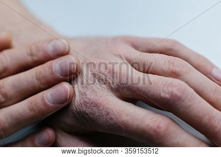 Man With Sick Hands, Dry Flaky Skin On His Hand With Vulgar Psoriasis, Eczema And Other Skin Disease