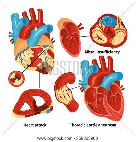 Flat Icons Set With Heart Anatomy And Different Types Of Diseases Isolated On White Background Vecto