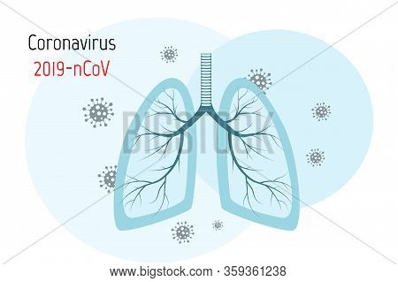 Virus Cells In Lung. Infected Lungs. Coronavirus, Covid-19. 2019-ncov. Lung Disease, Pneumonia, Asth