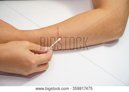 Close Up Men's Arms Hand, Upper Limb Or Arm To The Wounded Blood And Lesion, Slit Waiting For Nurse