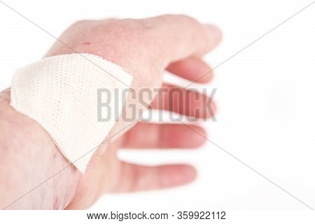 Chemical Burn On The Wrist Skin With Hydroxide Sodium Acid. Festering And Deep Wound. Household Acci
