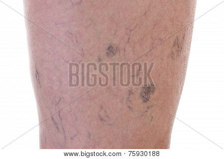 Leg Full Of Varicose Veins