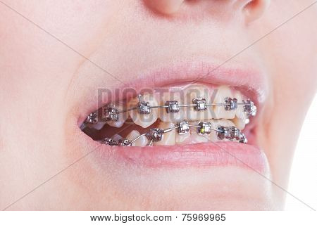 Orthodontic Braces On Teeth Close Up