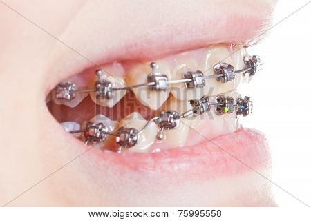 Side View Of Dental Brackets On Teeth Close Up
