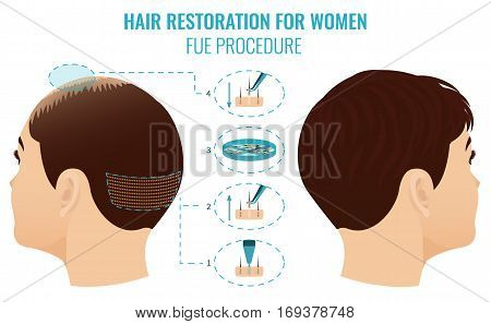 Female hair loss treatment with follicular unit extraction. Stages of FUE procedure for women. Alopecia medical template for transplantation clinics and diagnostic centers. Vector illustration.