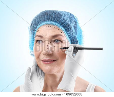 Surgeon drawing marks on female face against blue background. Plastic surgery concept