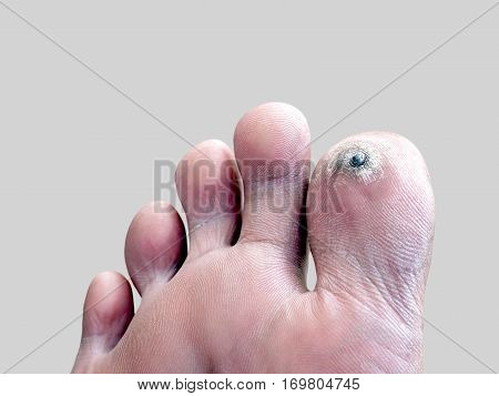 corn on toe, dermatology that is caused by pressure, closeup callus and hyperkeratosis thick on toe isolated on gray background