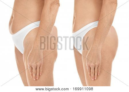 Mature woman body before and after liposuction. Plastic surgery concept.