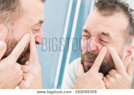 Adult Man Investigating His Pimples On Face. Guy Trying To Get Rid Of Pimple Squeezing It.