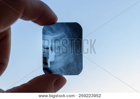 X-ray Of The Canals In The Roots Of The Tooth With Tools Inside The Doctor's Fingers On A White Back
