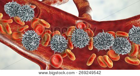 Hairy cell leukemia, 3D illustration. It is a hematological malignancy, chronic lymphocytic leukemia, with accumulation of abnormal B lymphocytes poster