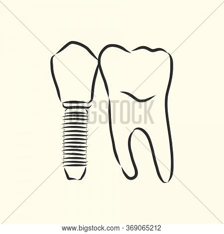 Vector Illustration. Sketches, Dental Implants. Dental Implant, Vector Sketch Illustration