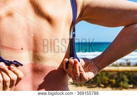Caucasian Woman Back And Shoulders Skin Hurt From Sun Burn. Severely Burned Skin, Red Tanned Body