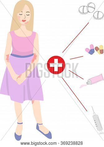 A Young Girl In Dress Has Skin Problems. Dermatitis, Atopic Dermatitis, Allergy, Rash, Red Spots, Ir