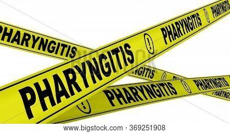 Pharyngitis. Yellow Warning Tapes With Black Words Pharyngitis (inflammation Of The Pharynx, Causing