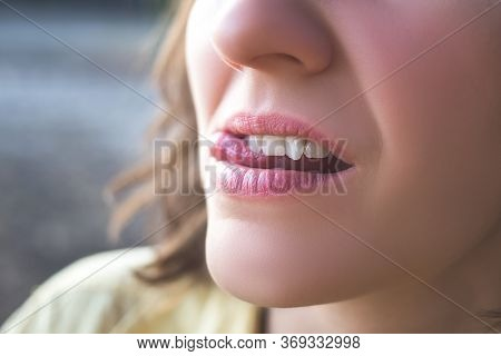 Photo Of Crooked Woman Teeth For Design