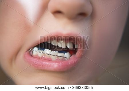 Photo Of A Little Girl's Mouth With An Orthodontic Appliance And Crooked Teeth