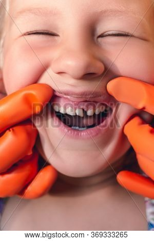 The Doctor Is Trying To See The Mouth Of A Little Girl With An Orthodontic Appliance And Crooked Tee
