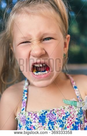 Little Girl With Orthodontics Appliance And Crooked Teeth. Wobbly Tooth