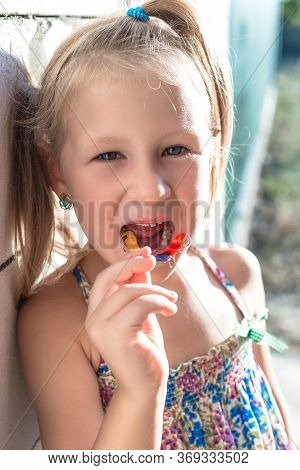 Little Girl Shows His Orthodontic Appliance. A Child With Crooked Teeth And A Wobbly Baby Tooth.