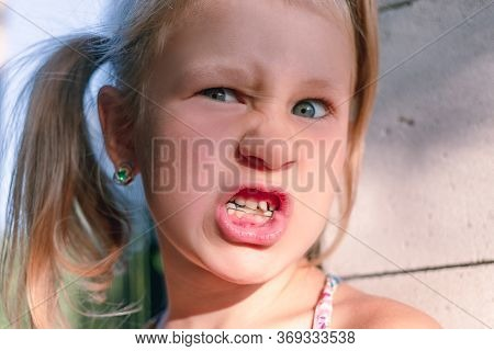 Little Girl With Crooked Teeth And Orthodontic Appliance. Wobbly Baby Tooth