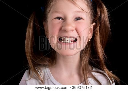 Little Girl Shows Crooked Teeth On A Black Background. Studio Photo.