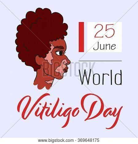 World Vitiligo Day. Curly African-american Girl With Vitiligo Pigment Spots. Side View Portrait Of W