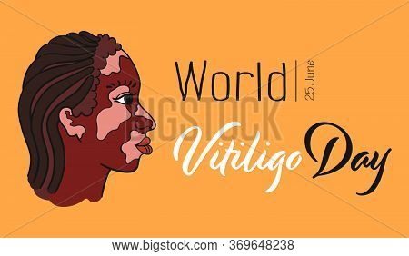 World Vitiligo Day. Dreadlocks Hair Girl With Vitiligo Pigment Spots. Side View Portrait Of Woman -