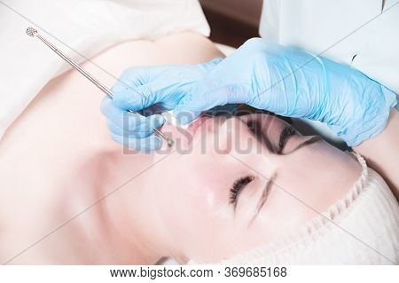 Close-up Mechanical Face Peel At The Beautician. Beautician Squeezes Acne On The Patients Forehead W