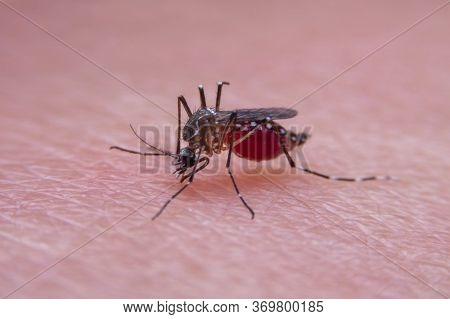 Striped Mosquitoes Are Eating Blood On Human Skin, Dangerous Malaria Infected Mosquito Skin Bite
