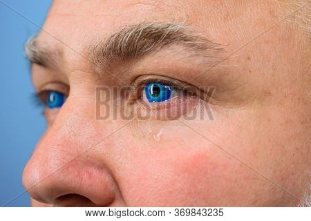 Contact Lens. Tears. Man With Blue Color Lens In Eye. Cry. Crying Man With Contact Lens. Vision. Sig