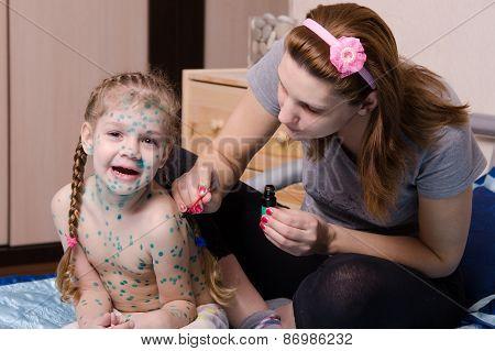 Girl Suffering From Chicken Pox Yells When My Mother Misses Sores Zelenkoj