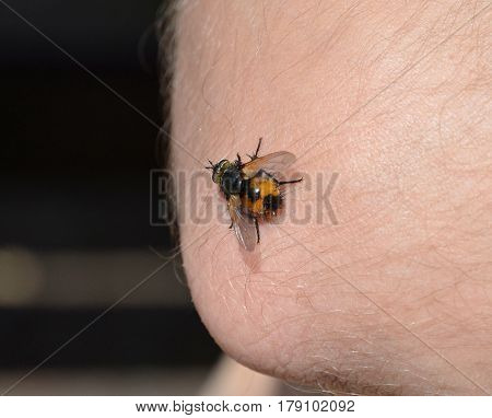 Insects sitting on the skin on his elbow and sucking blood