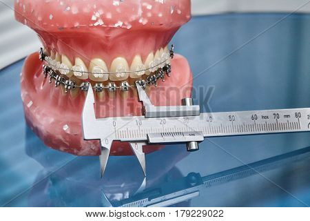 Human jaw or teeth model with metal wired dental braces and vernier caliper closeup