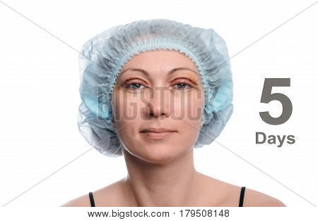 Blepharoplasty of the upper eyelid. An operation that removes the excess ugly skin of the eyelids above the eyes. Eyes are open. Photos are taken at different times to track the healing process of the skin. The fifth day after the operation.
