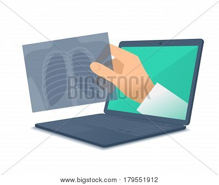 Laptop doctor's hand holding an x-ray image. Medic through the computer screen examines an xray. Tele online remote medicine concept. Vector flat isolated illustration for web design presentation.