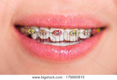 Multi-colored bracket system. Dental concept. close-up shot