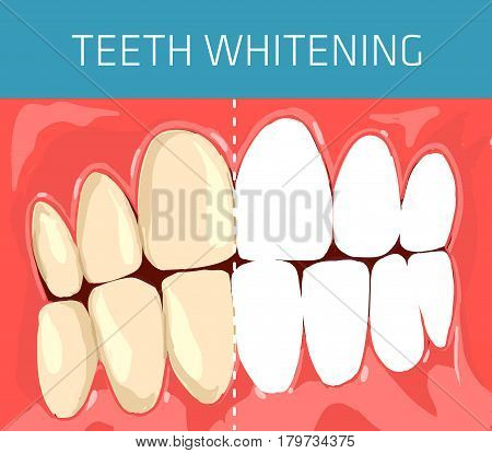 Medical and healthcare concept. Normal occlusion dental image. Teeth whitening visual scheme