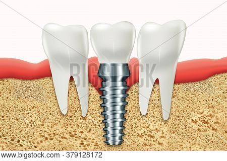 Dental Implant, Stainless Gum Post, Medical Information Poster. Teeth Replacement Concept, Dentures,