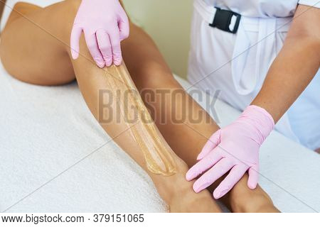Cosmetologist Is Applying Epilation Paste. The Hair Removal Procedure.