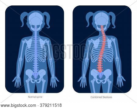 Normal Spine And Combined Scoliosis In Girl Body. Xray Flat Vector Illustration. Backbone, Joint And