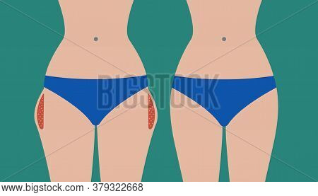 Hip Liposuction, Hip Correction Before And After. Exercises For Local Fat Removal. Vector Illustrati