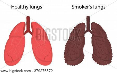 Vector Illustration Of Healthy Lungs And Lungs Of Smoker