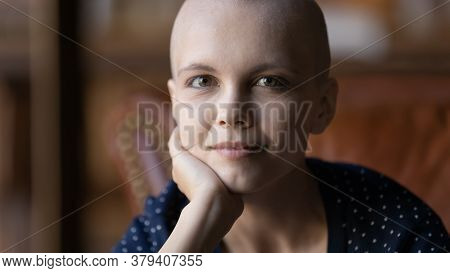 Portrait Of Young Hairless Woman Sick With Cancer