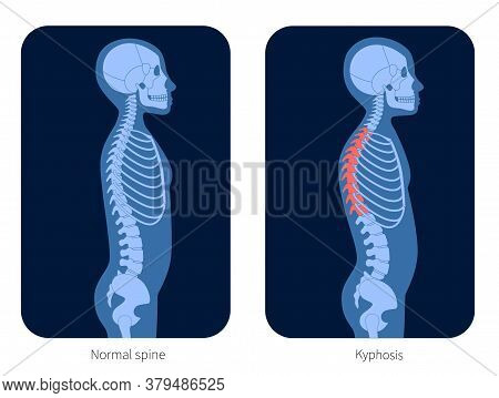 Normal Spine And Kyphosis In Child Body. Xray Flat Vector Illustration. Backbone And Skeleton Anatom