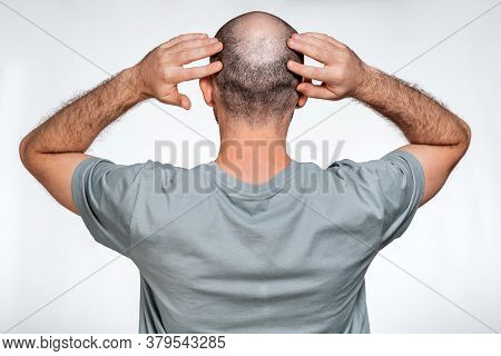 A Man Holds His Hands Over His Bald Head, Demonstrating Focal Alopecia. Rear View. The Concept Of Ba