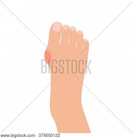 Hallux Valgus Deformation Bones Of Foot Skeleton Of Human Leg, Bunion Disease. Rheumatoid Artritis J